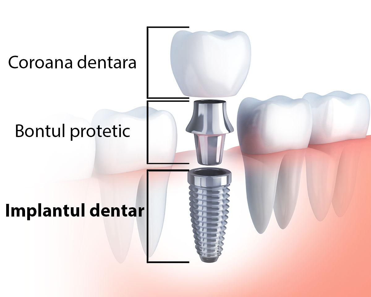 implantul dentar dentocare
